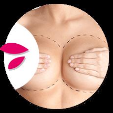 aumento-mamario-circle
