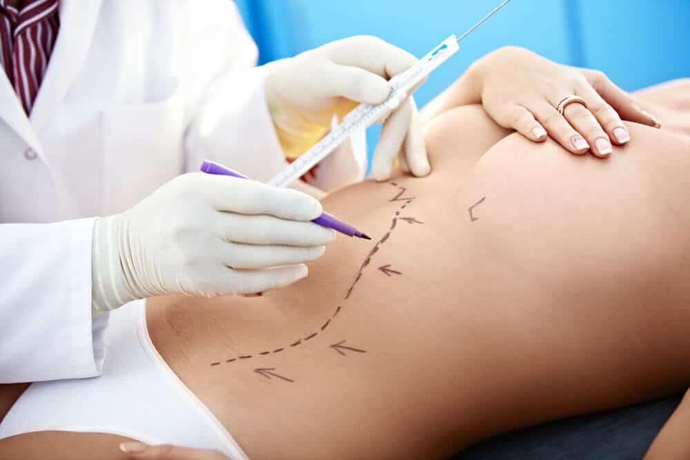 cirugia, cirugia plastica, cirugia estetica, lipotransferencia, lipoescultura,