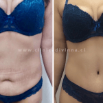 Abdominoplastia antes y despues 8