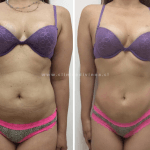 Abdominoplastia antes y despues 5