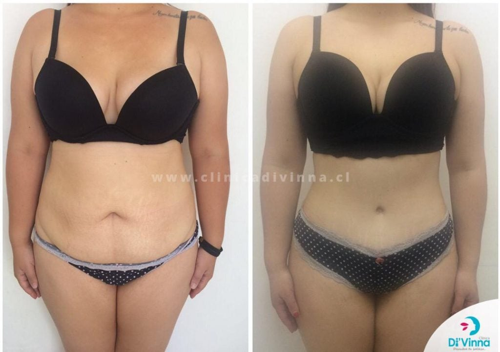 Abdominoplastia antes y despues 2